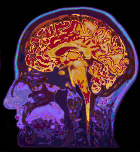 Ginkgo increases cerebral blood flow