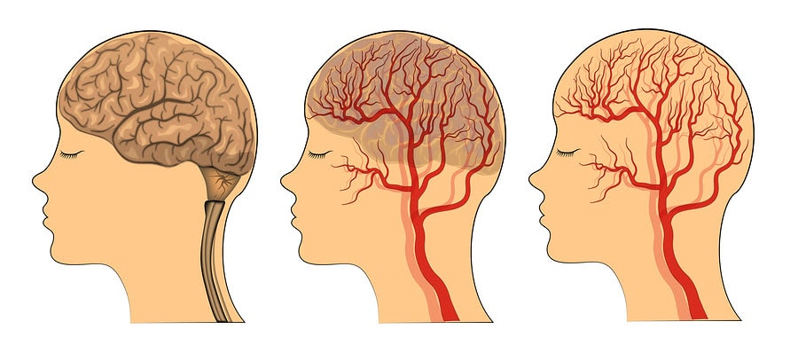 what is a leaky blood brain barrier